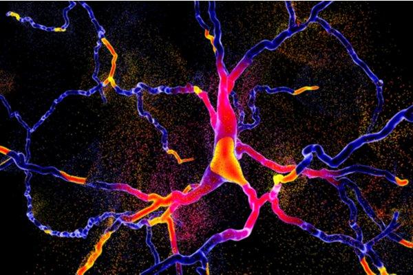 Progressive nature of dementia